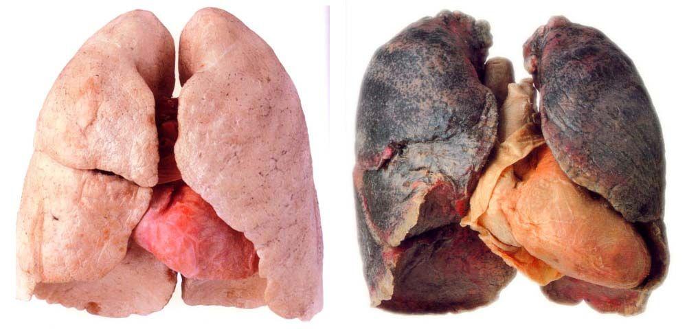 vaping vs smoking Filter test